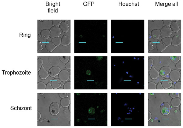 PfDHS protein localization in transgenic parasites.