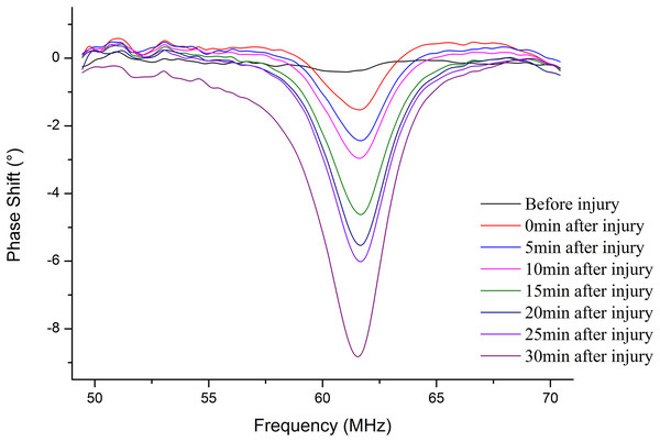 The MIPS curves were plotted before injury and 0 min, 5 min, 10 min, 15 min, 20 min, 25 min, 30 min after injury in the frequency of 50 MHz to 70 MHz.