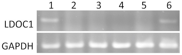 The LDOC1 expression in cell lines.
