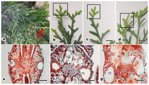 Morphology and anatomy of one-year-old scale leaf of ancient P. orientalis trees with different senescent degrees.