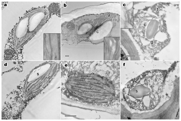 One-year-old leaf's ultrastructure of chloroplast, lipid droplets and starch grains of P. orientalis tree at different tree senescent degrees.