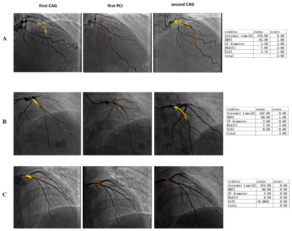 Imaging of patients with low, middle and high-risk stratification who underwent repeat percutaneous coronary intervention.