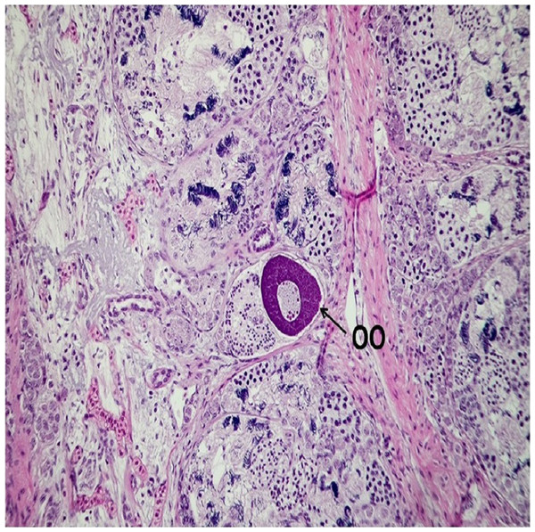 Micrographic image of a male testis with presence of oocyte inside seminiferous tubules, stained with Hematoxylin and eosin (HE), magnified at 20×.
