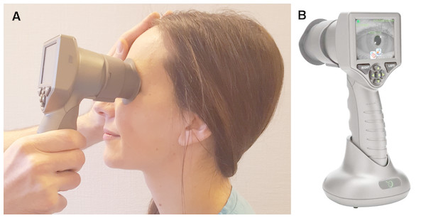 Pupillary dilation during mental arrithmetic assessed by automated pupillometry.