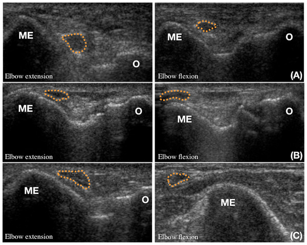 The ultrasonographic classifications of ulnar nerve (dotted line) displacement during elbow flexion.