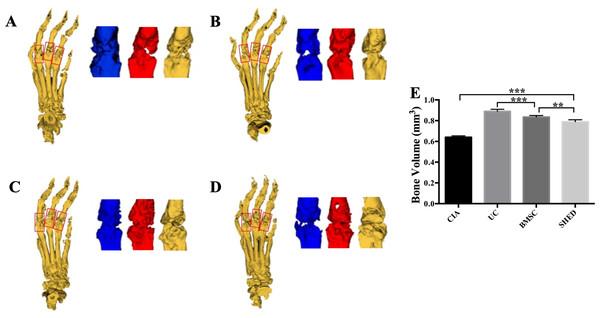MSC treatment prevented bone erosion in CIA mice.