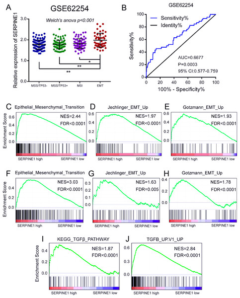 Overexpression of SERPINE1 is correlated with EMT in gastric cancer.