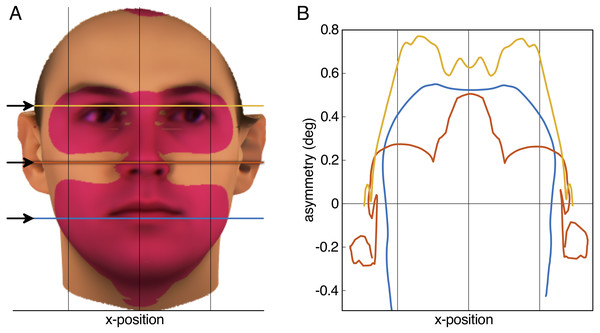 Result of the aurofacial asymmetry in adults.