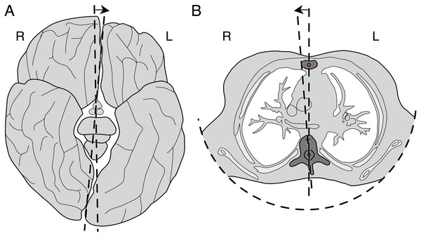 Opposite rotational asymmetries as viewed from below (in accordance with medical conventions, so that right [R] and left [L] are mirrored).