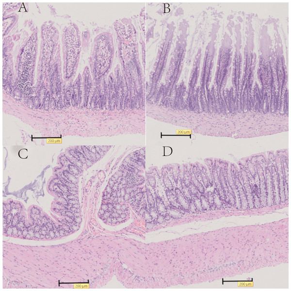 Representative histology of the ileum and colon with HE stain in T2D model rats.