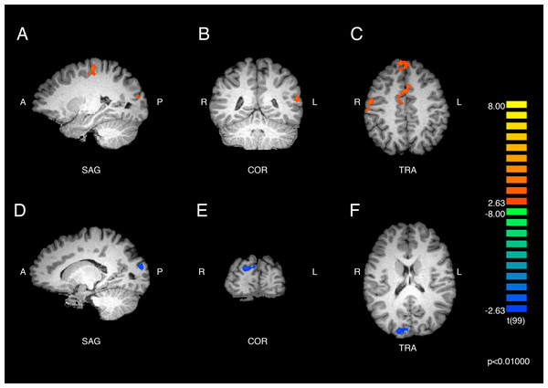 Brain activity detected by the ASMR-eliciting > control video contrasts.