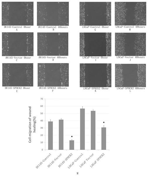 Upregulation of SPOCK2 on cell migration.