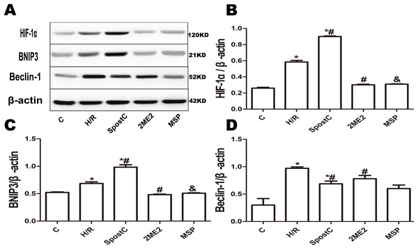 Effect of SpostC on HIF-1α, BNIP3 and Beclin-1 protein expression after H/R injury.