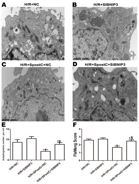 Mitochondrial structure and autophagosomes under electron microscopy after silencing of BNIP3.