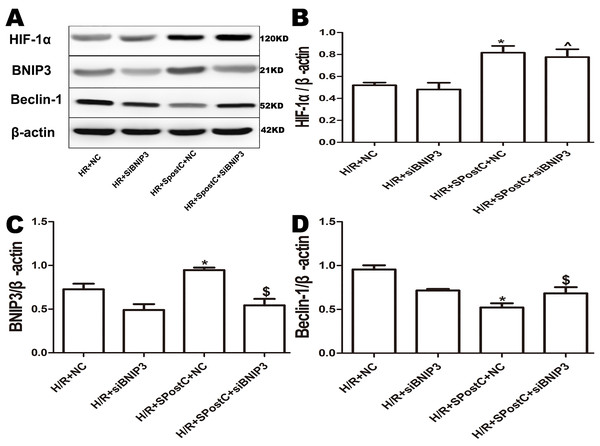 Expression of HIF-1α, BNIP3 and Beclin-1 protein in each group after silencing of BNIP3.