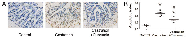 TUNEL staining and apoptotic index.