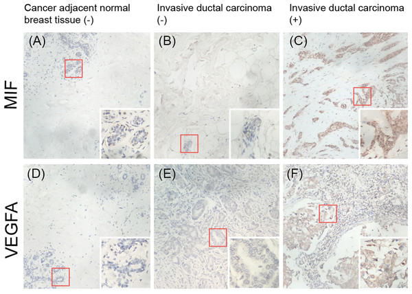 Immunohistochemical detection of the expression of MIF and VEGFA in a breast cancer tissue microarray.