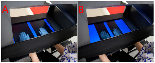 Disappearing hand procedure using the MIRAGE multisensory illusion box.