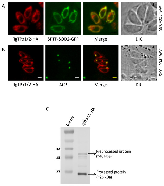 Assessing the localization of a T. gondii antioxidant protein TgTPx1/2.