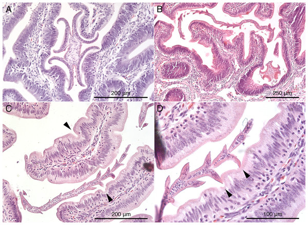 Histological sections of mucosal surface of Mustelus palumbes with cestodes attached.