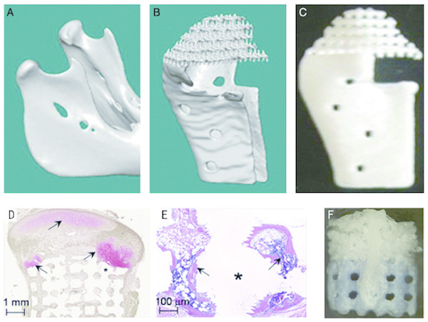 Image-based design allowing creation of defect site- specific scaffolds.