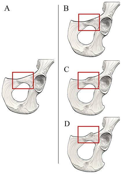 Illustrated character states for Character 1 (Iliopectineal tubercle presence).