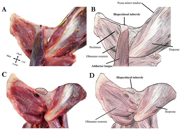Left extrinsic pelvic and hindlimb musculature of an adult female Sumatran orangutan (Pongo abelii, NMS GH 84.17), anterior view.