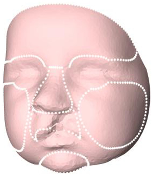 Selected regions for evaluation of facial growth: total facial surface, nose, upper lip, chin, forehead, and cheeks.