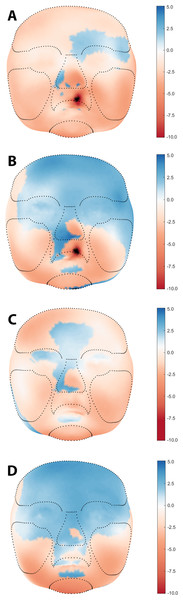 Visual assessment of average facial morphology of UCLP vs. controls at age (A) 3, (B) 6, (C) 9, and (D) 12 months in color distance map (colour scale red – blue = −10.0 mm – + 5.0 mm).