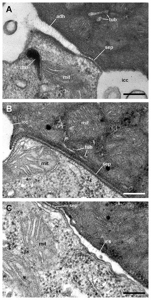 Cell junctions in the gill epithelium (transmission electron microscopy).