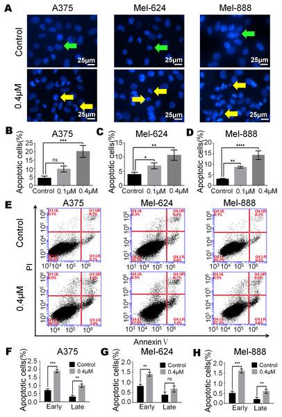 Monensin induces apoptosis of human melanoma cells.