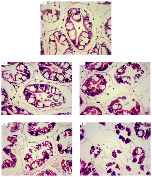 Hepatopancreas tissue structure (×400) of L. vannamei with HE dye after acute cold-stress.