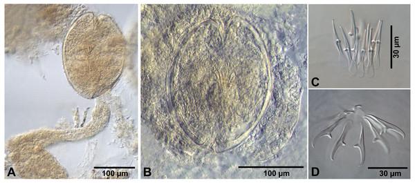 Fimbriarioides (?) sp. from Artemia persimilis, Los Cisnes lagoon (A, D) and Amarga lagoon (B, C), Chile.