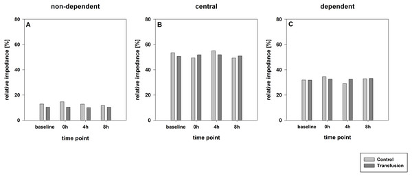 Regional distribution of tidal volumes.