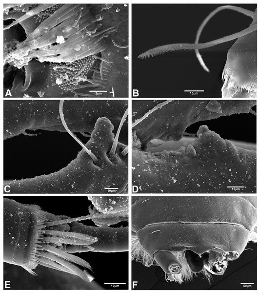 Hargeria chetumalensis sp. nov. males from Raudales, Quintana, Roo. SEM images.
