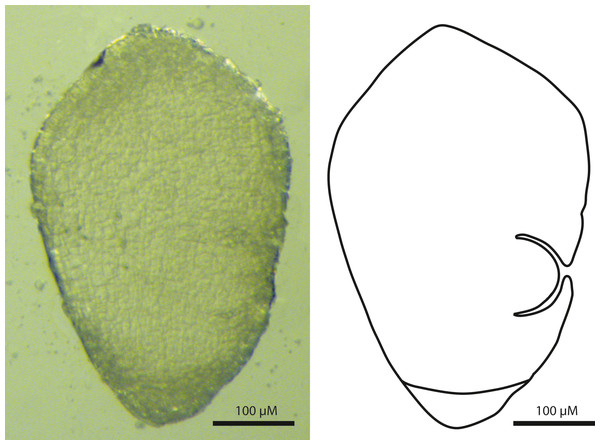 Sagittal view of the Carex-type embryo of Trichophorum scabriculme (B. Ford 1225, J. Starr & J. Regalado, WIN).