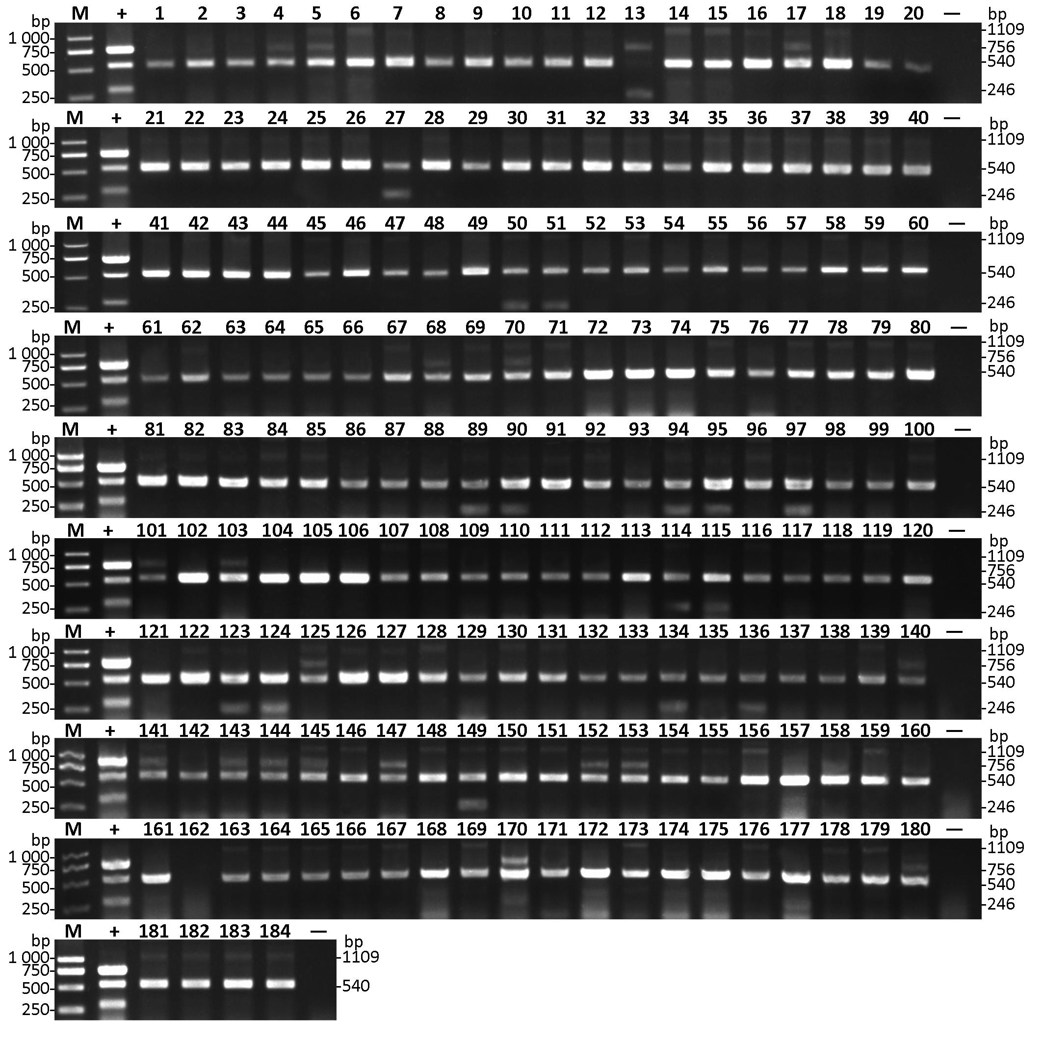 Development of a multiplex RT-PCR assay for simultaneous