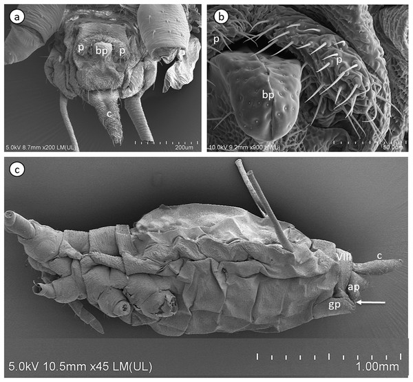 Scanning electron micrographs of the male external genitalia (A) and (B) and a whole-mounted oviparous female (C) of A. pisum.
