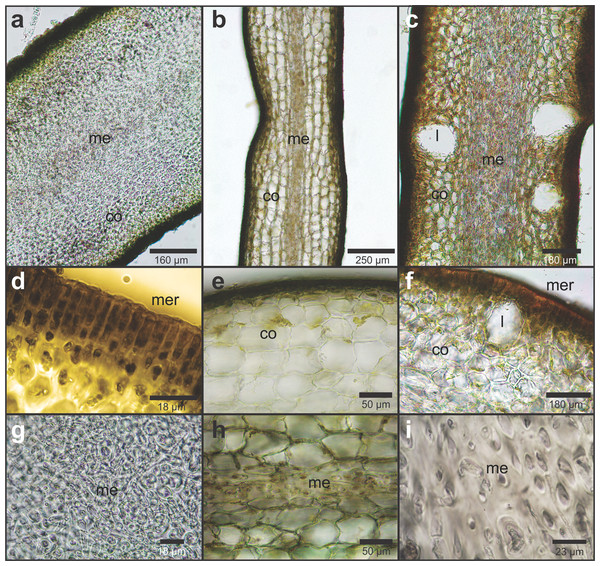Cross section of the medial part of mature fronds of Lessonia species who inhabit the Sub-Antarctic channels.