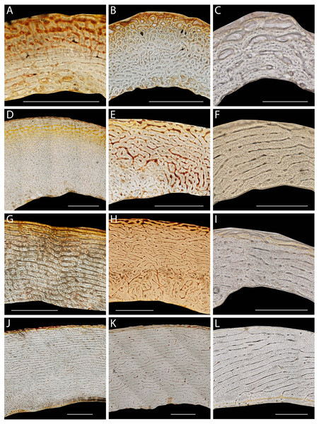 Representative histological sections of emu femora, tibiotarsi, and humeri from a range of ages.