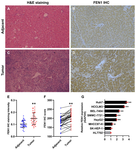 FEN1 was up-regulated in HCC tissues and hepatoma cell lines.