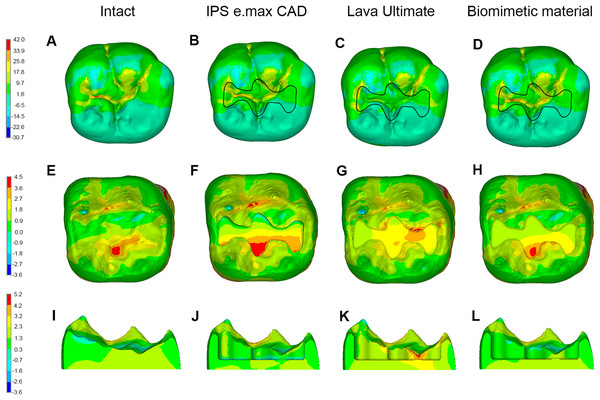 Stress distributions (MPa) in molars in Group 2.