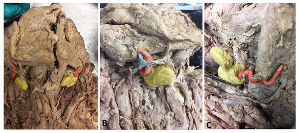 Photos demonstrating anatomical variations in neurovasculature around the submandibular gland.