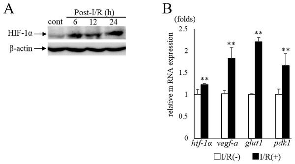 HIF-1α and its target genesexpression in post- I/R retina.