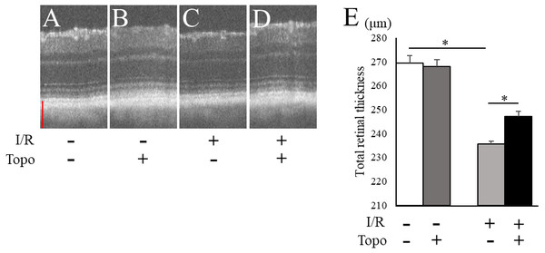 Evaluation of totalretinal thickness with OCT.