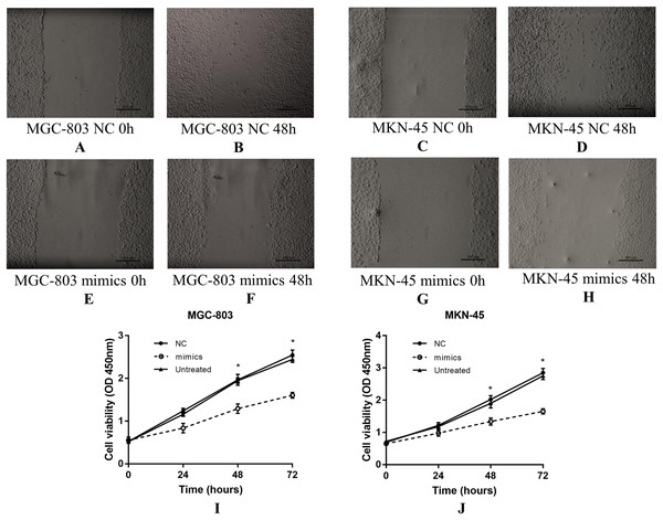 The effect of miR-383-5p on the proliferation and migration of GC cells.
