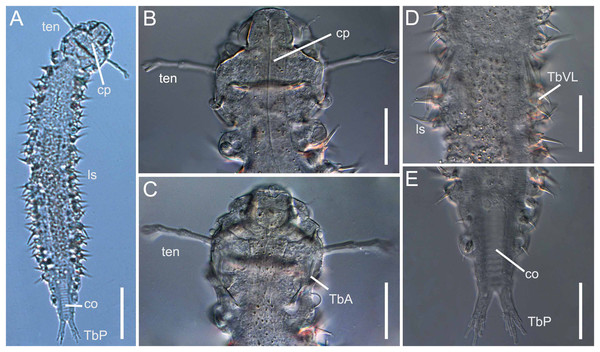 Xenodasys sp., DIC images from Brazil