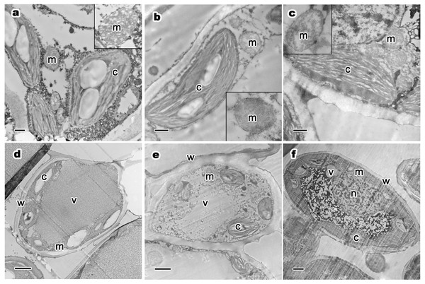 Relative distribution between mitochondria and chloroplasts, and ultrastructure of mesophyll cells and organelles of P. orientalis tree at different tree ages.