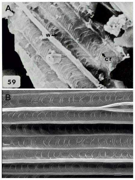 Scanning electron microscope images of Prohepialus sp. identified by Jarzembowski (1980) and Sthenopis argenteomaculatus (Harris).