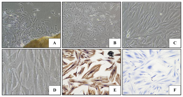 The morphology and immunohistochemical staining of PDLFs.